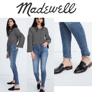 """Madewell 10"""" High-Rise Button-Front Skinny Jean"""